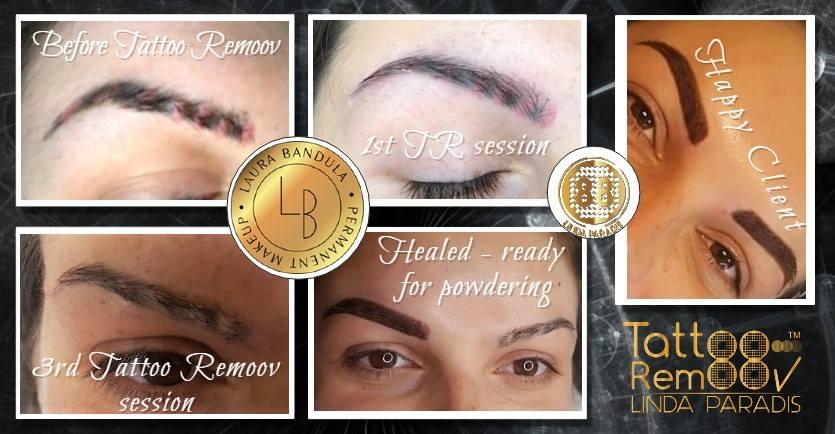 Tattoo Remoov înseamnă rezultate de excepţie şi clienţi fericiţi!